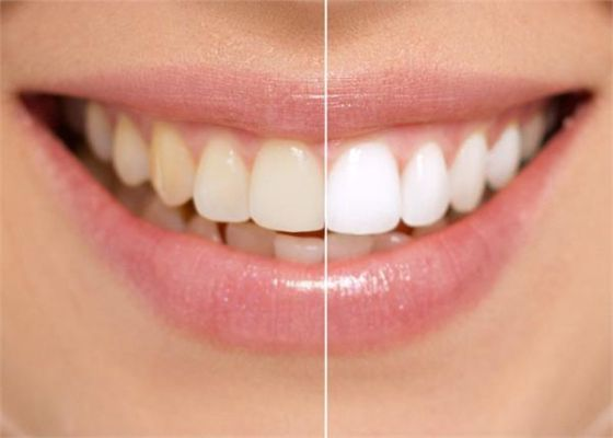 दातों को मोतियों जैसे सफेद बनाने के कुदरती तरीके, इस तरह कर सकते हैं सफाई