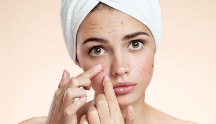 5 Homemade Face Packs To Get Rid Of Acne Marks - Lifeberrys English |  DailyHunt